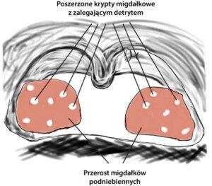 detryk w kryptach migdałków podniebiennych