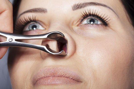 wziernikowanie nosa